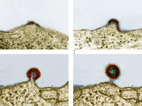 AIDS Virus (0.0000001 m) (Image Credit / science.nationalgeographic.com)