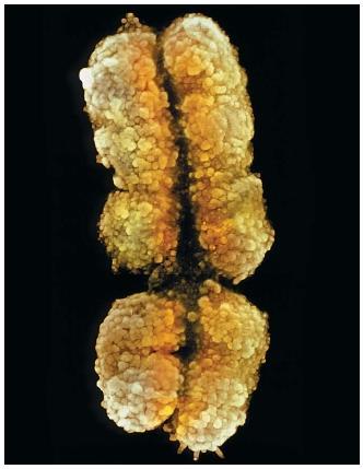 X Chromosome (0.000001 m) (Image Credit / scienceclarified.com)